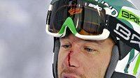 Americký lyžař Bode Miller s rozbitým nosem od jedné z branek na trati v Levi