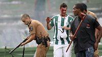 Krvácející fanoušek Coritiby prochází kolem policisty, který střílí do davu gumovými projektily.