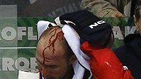 Krev na hlavě Karla Rachůnka po tvrdém ataku Jevgenije Arťuchina.