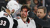 Connor Garland a jeho krvavé zranění v duelu s Edmontonem.