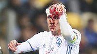 Krev nešla zastavit. Domagoj Vida musel v duelu s Bernem střídat.