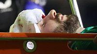 Brankář slávistických fotbalistů Ondřej Kolář utrpěl zlomeninu v obličeji.