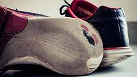 Pata?! Na co? řekli si Španělé a vymysleli novou botu. (ilustrační foto)