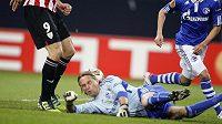 Brankář Schalke Timo Hildebrand musel v zápase s Bilbaem kvůli lokti střídat.