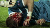 Zakrvácený slovenský stoper Tomáš Hubočan po srážce s kolenem Roberta Lewandowského.