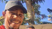 Alex Oliveira už je v pohodě, ale 29 stehů na čele nejde přehlédnout.