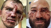 Následky bo bitvě v ringu. Artem Lobov a Jason Knight si to rozdali bez rukavic, jen pěstmi.
