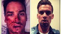 Zdeněk Štybar zveřejnil prostřednictvím svého účtu na twitteru fotografii, jak vypadal bezprostředně po nehodě a s několikadenním odstupem.