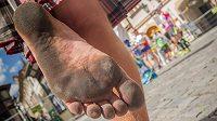 Tomáš Zahálka. Tradičně bos a v kiltu. Takto vypadají nohy po maratónu.