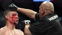 Nate Diaz a jeho obličej po duelu s Jorge Masvidalem.
