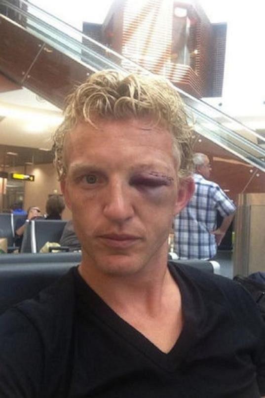Napuchlé oko Dirka Kuijta, památka na srážku se spoluhráčem na tréninku.
