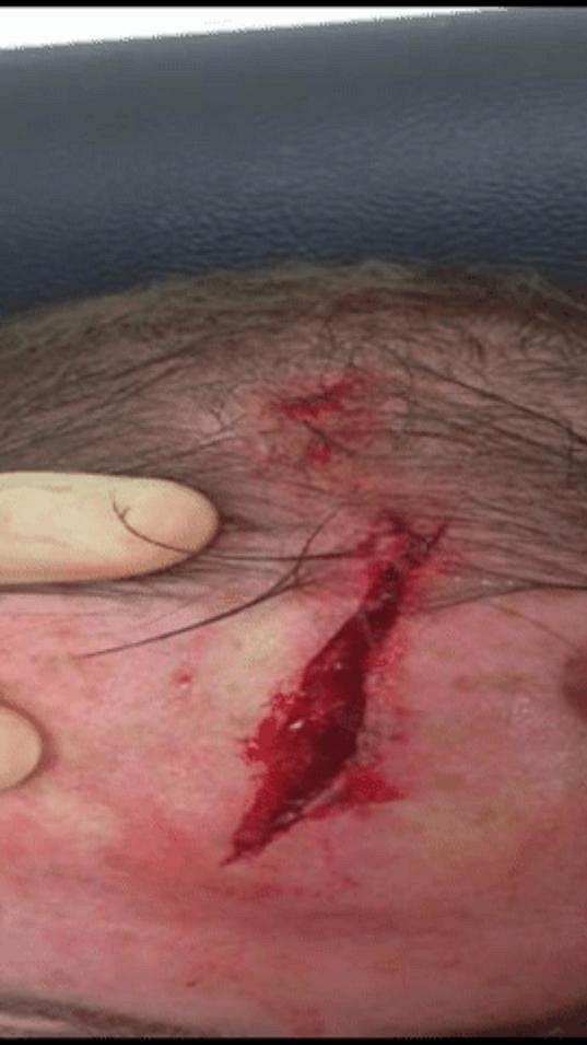 Jizva na hlavě Wayna Rooneyho po tréninku.