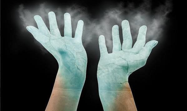 studených a zpocených rukou.
