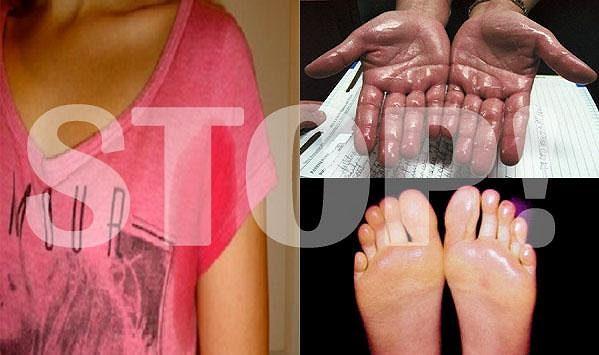 STOP! pocení rukou, nohou a podpaží