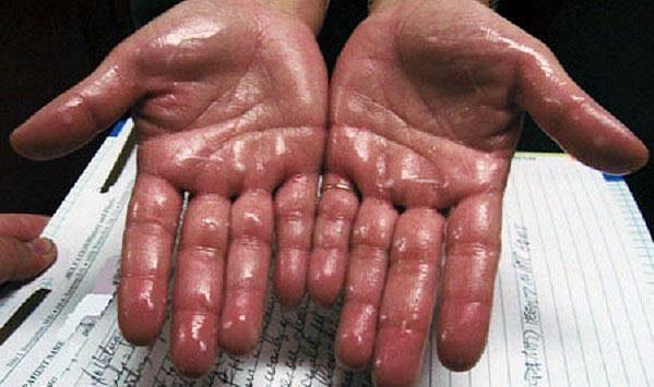 nežádoucí pocení rukou