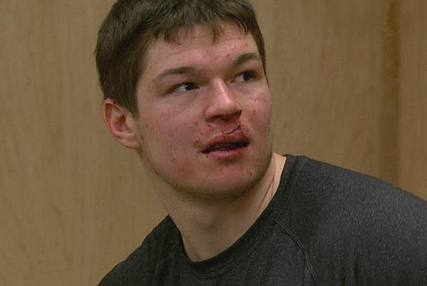 Útočník San Jose Tomáš Hertl, který kvůli zranění nedohrál zápas ve Winnipegu.