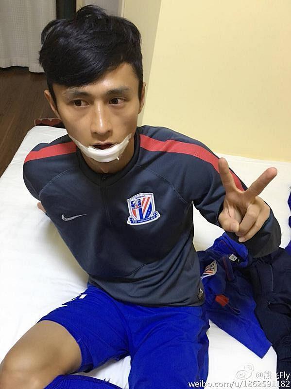 Siung Fej měl štěstí v neštěstí, strašidelný spoluhráčův zákrok neodnesl žádným vážným zraněním.