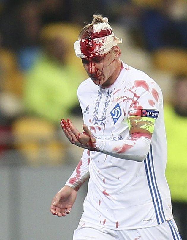 Kapitán Dynama Kyjev Domagoj Vida nemohl v duelu s Young Boys zastavit proud krve.