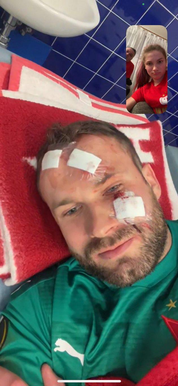 Lucie Kolářová viděla krvavá zranění v obličeji svého bratra Ondřeje krátce po surovém faulu Kemara Roofeho z Glasgow Rangers ve videohovoru.