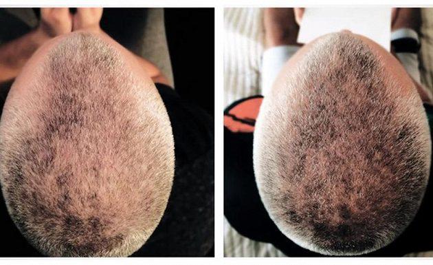 Provexin® A100HF je zdravotnický prostředek, který má prokazatelné účinky při vypadávání vlasů. Jeho používáním můžete snížit vypadávání vlasů způsobené androgenní alopecií.