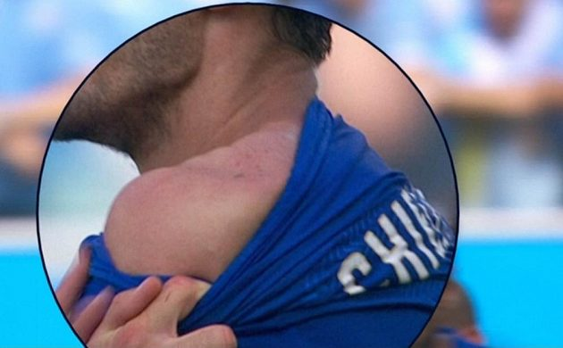 Detailní otisk chrupu Luise Suáreze na rameni Giorgia Chielliniho.