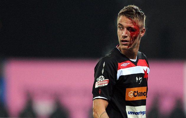 Zraněný Ondřej Petrák ze Slavie během utkání v Plzni.