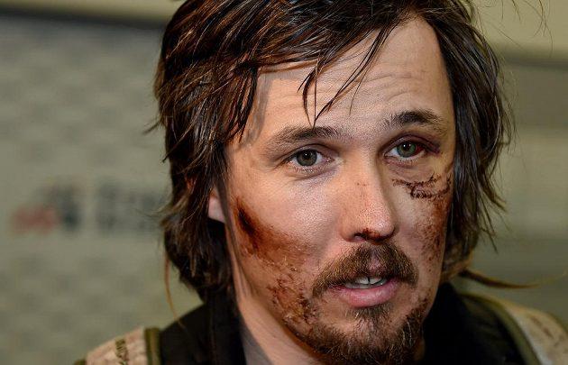 Ošklivá zranění v obličeji si přivezl Ondřej Bank z amerického MS.