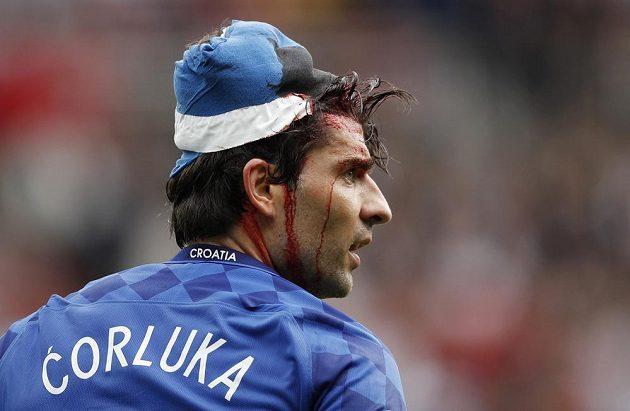 Chorvat Vedran Čorluka a jeho krvavé zranění hlavy.