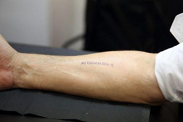 Kérka na Koubkově ruce je pouze decentní.