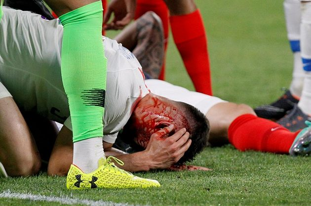 Po srážce hlavami v utkání mezi Francií a USA skončil Američan Matt Miazga s tržnou ránou na hlavě.