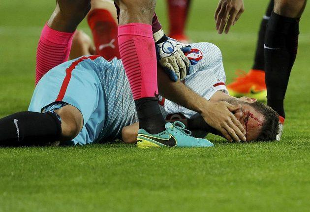 Turecký fotbalista Gokhan Gonul na zemi s roztrženým obočím po srážce s Tomášem Sivokem.