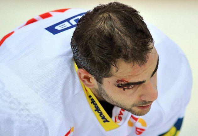 Zraněný Petr Jelínek z Liberce v utkání s Třincem.
