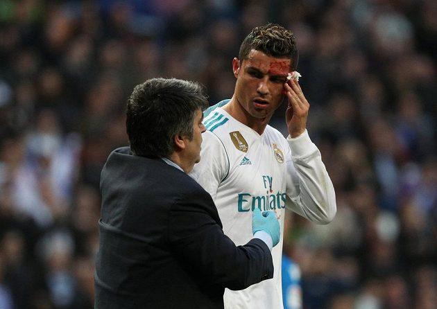 Cristiano Ronaldo z Realu utrpěl při utkání s La Coruňou krvavé zranění.