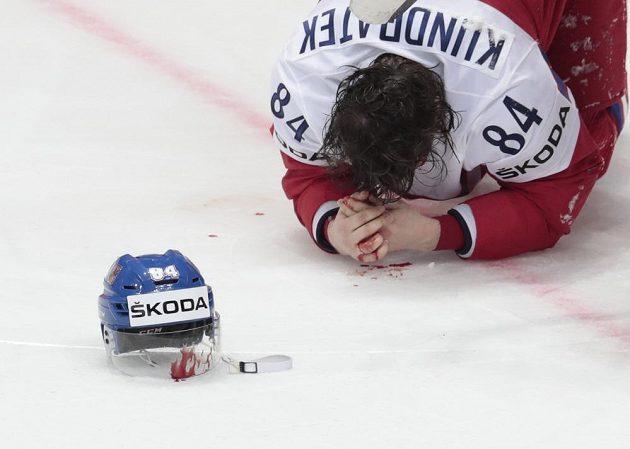 Zraněný český obránce Tomáš Kundrátek v zápase s Lotyšskem.