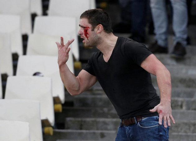 Zakrvácený fanoušek Ajaxu ukazuje policii své zranění.