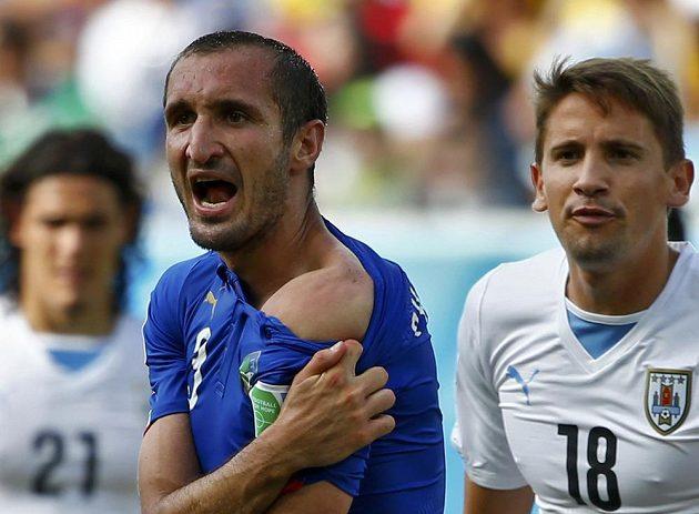 Italský zadák Giorgio Chiellini ukazuje sudímu rameno, do něhož ho o chvíli dříve kousl uruguayský snajpr Luis Suárez.