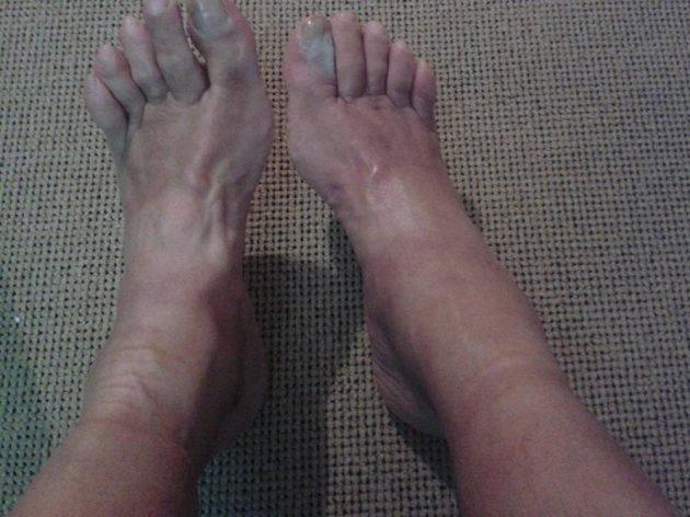 Takto vypadají jeho nohy po šestidenním ultraběhu.