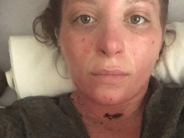 Přítelkyně Jacoba Cardwella Hana Engelová má popáleniny na 35 procentech těla.
