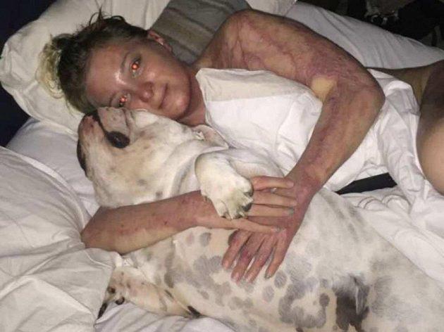 Přítelkyně Jacoba Cardwella Hana Engelová s buldočkem Gwenem.