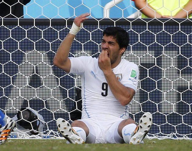 Luis Suárez se drží za zuby - italský zadák Chiellini má zřejmě velmi tvrdé kosti.