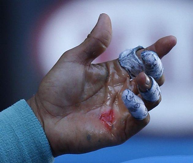 Krvavé puchýře na levé ruce Rafaela Nadala v utkání s Grigorem Dimitrovem.