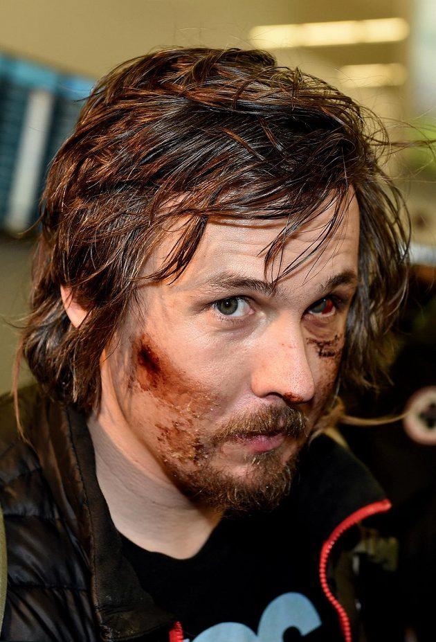 Lyžař Ondřej Bank si přivezl z MS šrámy v obličeji po hrozivém pádu v kombinačním sjezdu.