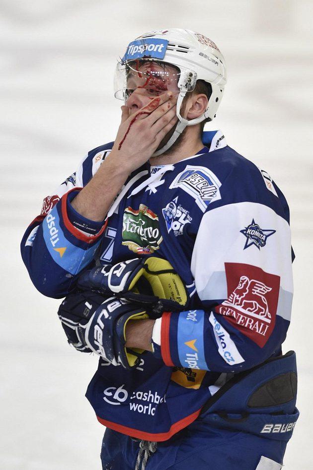 Zraněný Radim Zohorna z Brna.