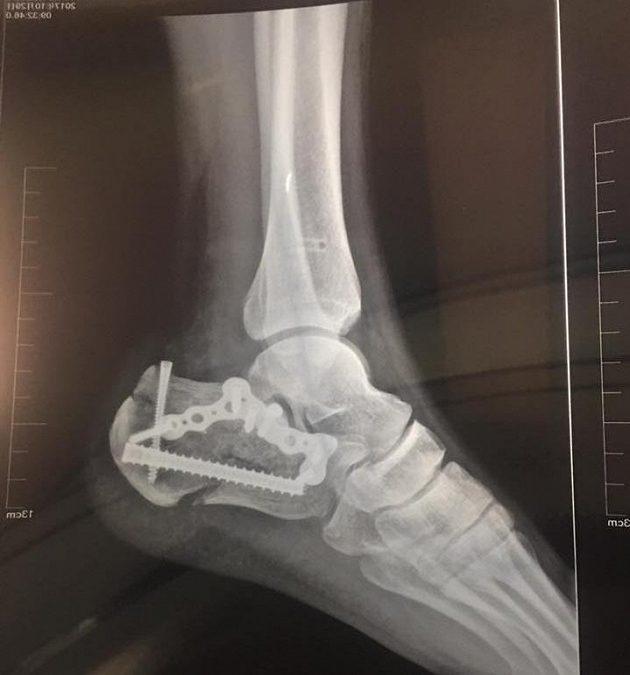 Takhle teď vypadají obě nohy Kaie Markuse.