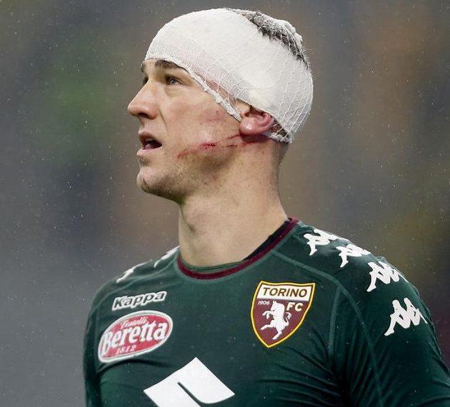 Takhle turínský brankář Joe Hart dopadl po faulu milánského Gianlucy Lapaduly...