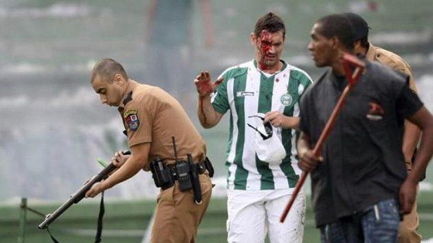 Krvácející fanoušek Curitiby prochází kolem policisty, který střílí do davu gumovými projektily.
