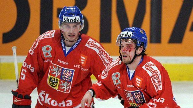 Tomáš Mojžíš (vlevo) a Petr Koukal, jenž si ze zápasu se Švédskem odnesl krvavý šrám ve tváři
