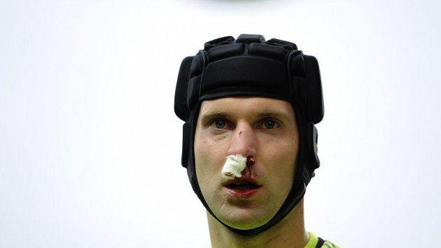 Brankář Chelsea Petr Čech musel být během utkání s Blackburnem ošetřen.
