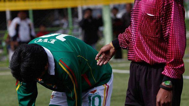 Evo Morales ukazuje svou nakopnutou holeň.