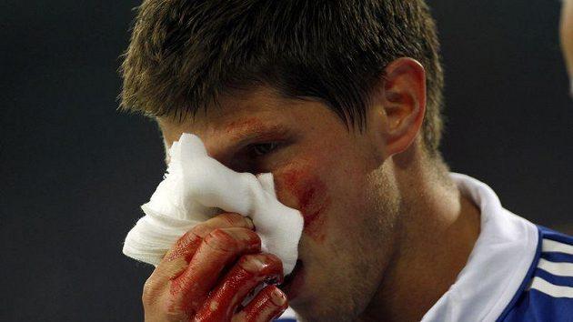 Klaas-Jan Huntelaar si drží zakrvácený nos po srážce se spoluhráčem.